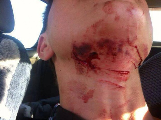 Sent in by Max Fleming Mate hit a Barbwire fence.